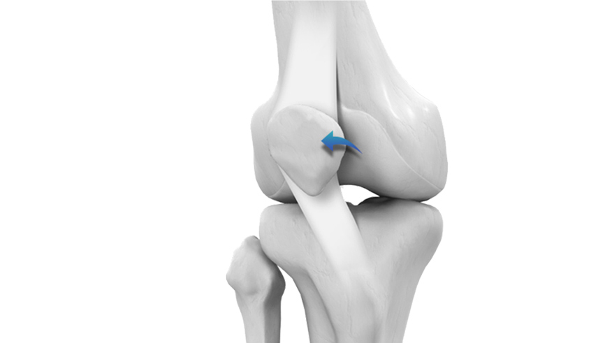 Knee Related Sports Injuries